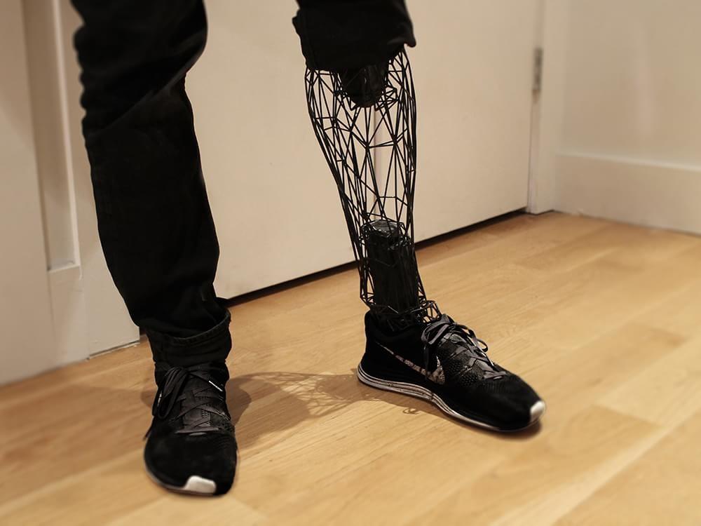 Impressão 3D de prótese - Fonte: Tecmundo